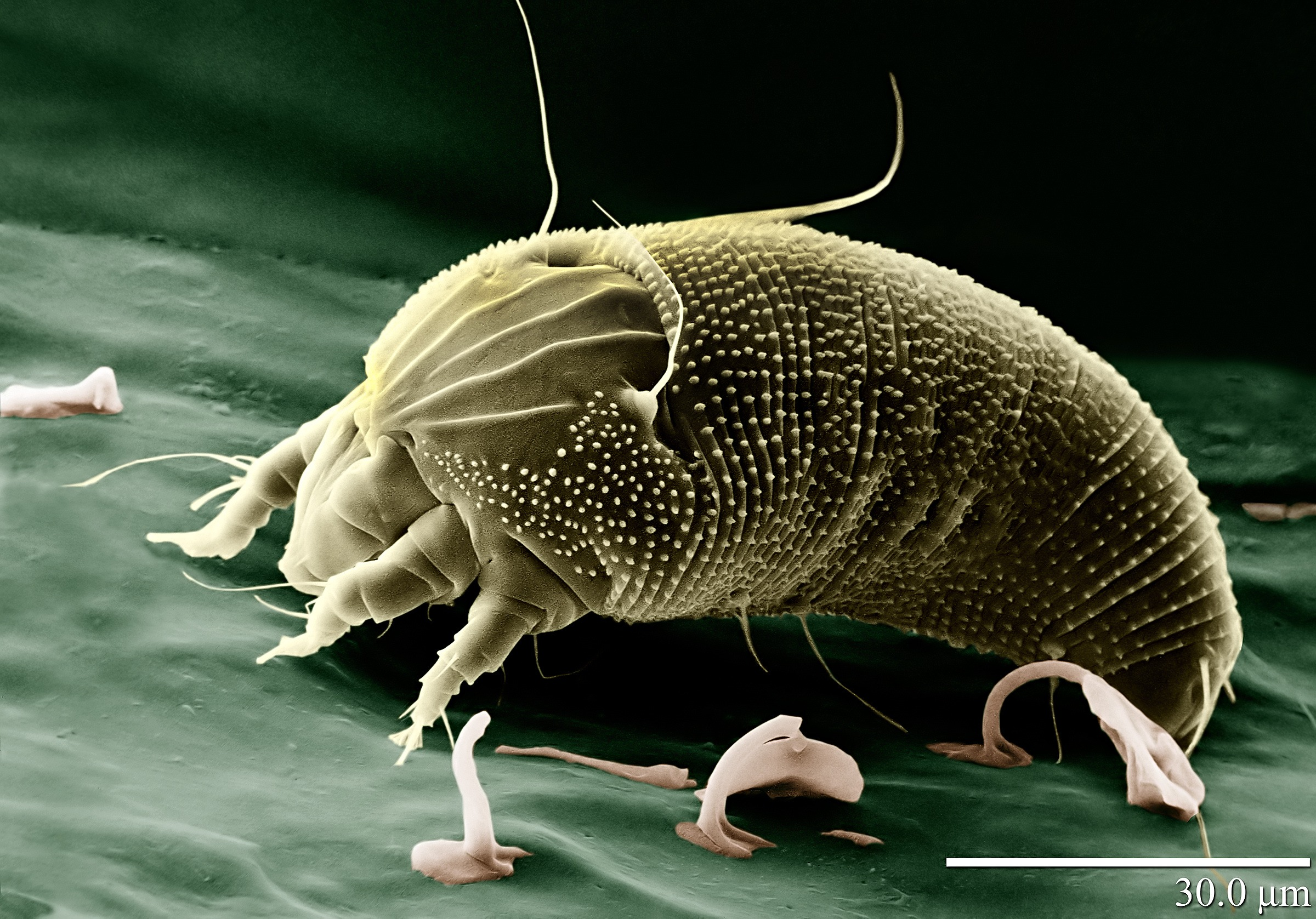 Demodex Milben
